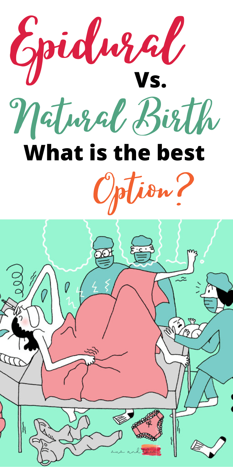 Epidural vs. natural birth
